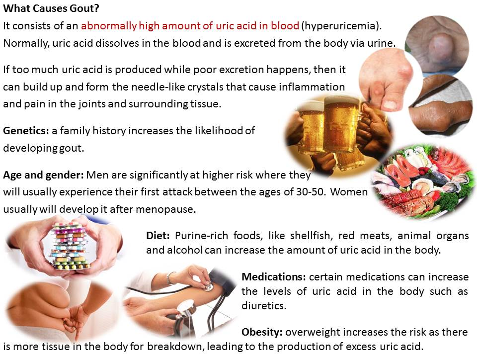 gout goals of therapy how to reduce uric acid in indian diet gout causes and treatment